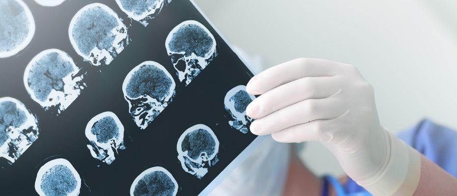 компьютерная томография головы волгоград
